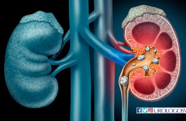 Las piedras en riñones y el urólogo